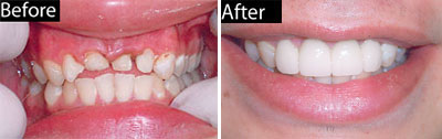 Porcelain Crowns Before and After - Comprehensive Dentistry for All Ages in Lake Jackson TX