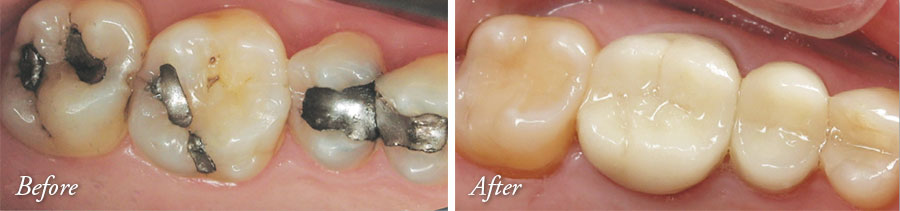Tooth-Colored Fillings and Crowns - Lake Jackson Dentist Comprehensive Dentistry for All Ages
