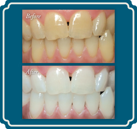 Teeth Whitening Before and After - Lake Jackson TX Dentist Comprehensive Dentistry for All Ages