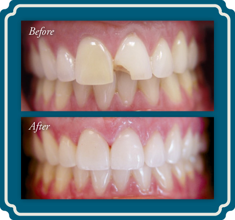 Porcelain Veneers at Lake Jackson TX Dentist Comprehensive Dentistry for All Ages